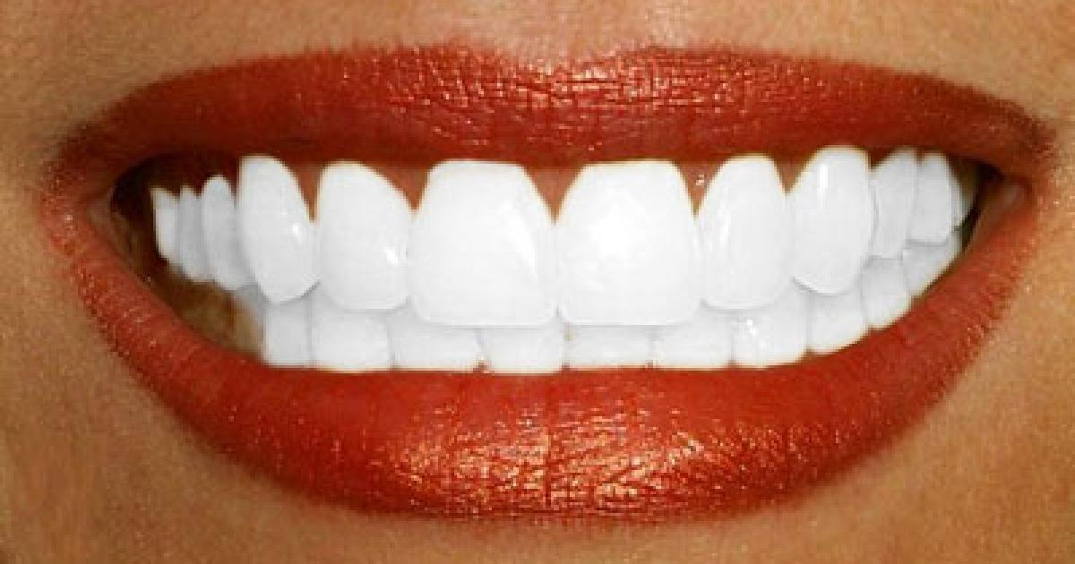 dents-blanches-astuces-blanchiment