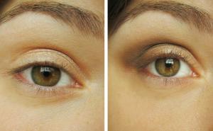 éclaircissement-yeux