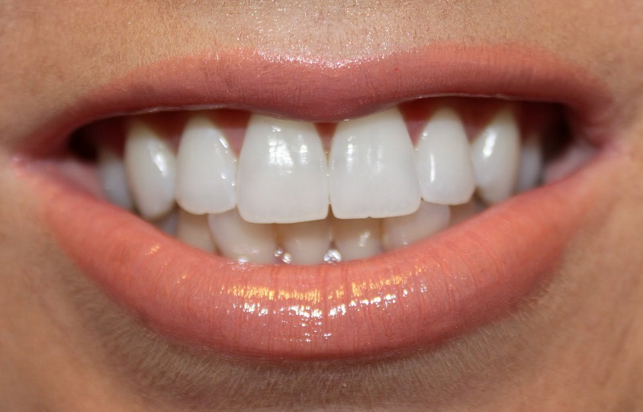 dents-blanches-rapidement
