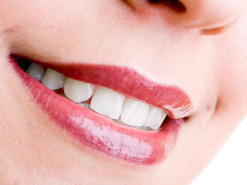 Soin-des-dents-détartrage-maison