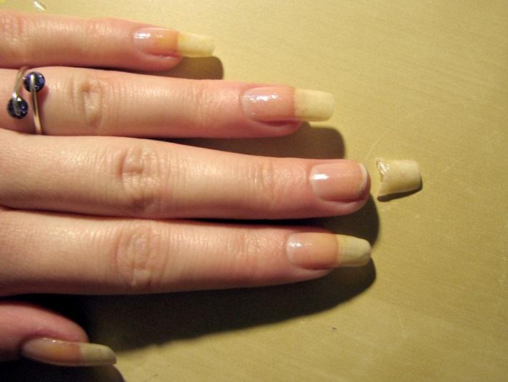 réparer-ongle-cassé