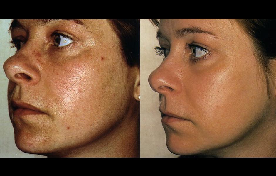 resserrer ports dilatés peau visage