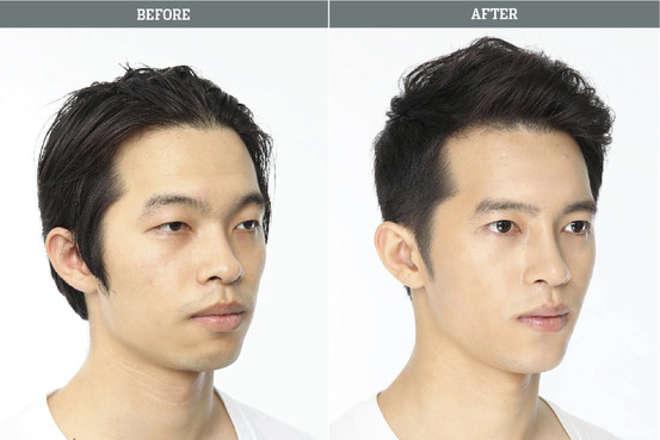 chirurgie-esthetique-avant-après-corée 1