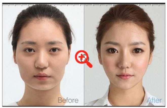 chirurgie-esthetique-avant-après-corée 10