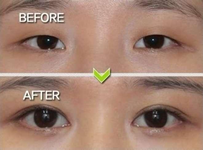chirurgie-esthetique-avant-après-corée 11
