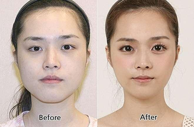 chirurgie-esthetique-avant-après-corée 12