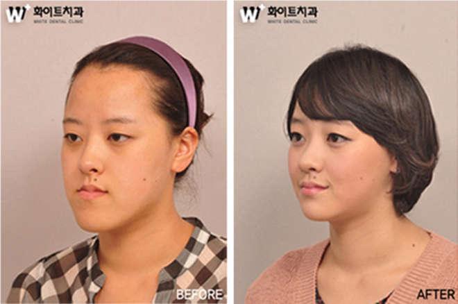 chirurgie-esthetique-avant-après-corée 17