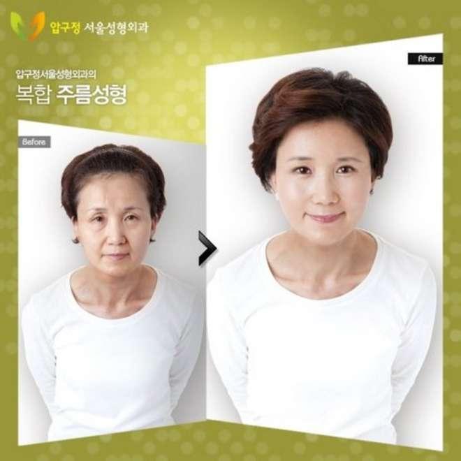 chirurgie-esthetique-avant-après-corée 21
