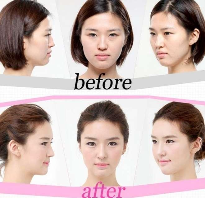 chirurgie-esthetique-avant-après-corée 24