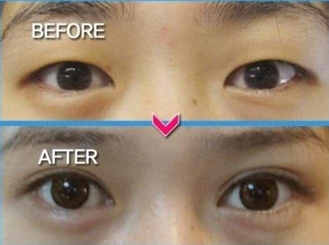 chirurgie-esthetique-avant-après-corée 25