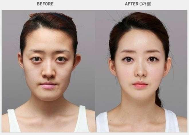 chirurgie-esthetique-avant-après-corée 31