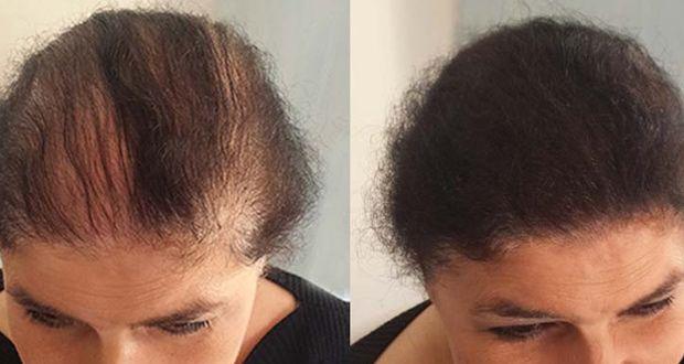 produit pour que les cheveux poussent plus vite