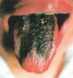 La-couleur-de-votre-langue-est-révélatrice-de-votre-état-de-santé-2