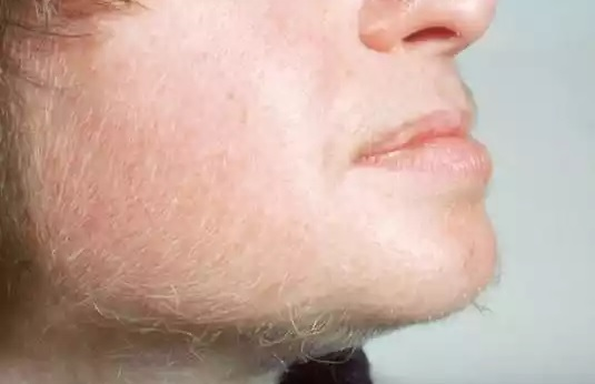 7-choses-choquantes-que-vos-poils-révèlent-à-propos-de-votre-santé-4